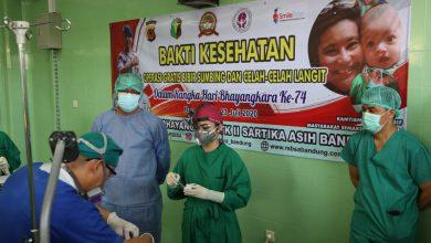 Photo of Dalam Rangka HUT Bhayangkara Ke-74, RS Sartika Asih Polda Jabar Gelar Operasi Bibir Sumbing Gratis